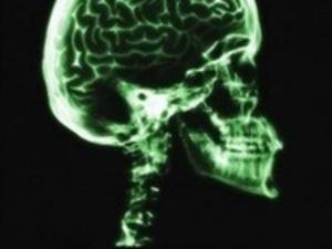 37th National Neurotrauma Society Symposium