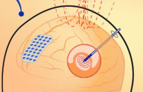 Symposium: Manipulating Brain States