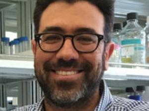 'Characterization of Microglia in the Cerebrospinal Fluid'