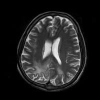 Neuroradiology Conference