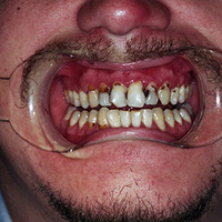 "Webinar: ""Meth Mouth"" - A State of Decay"