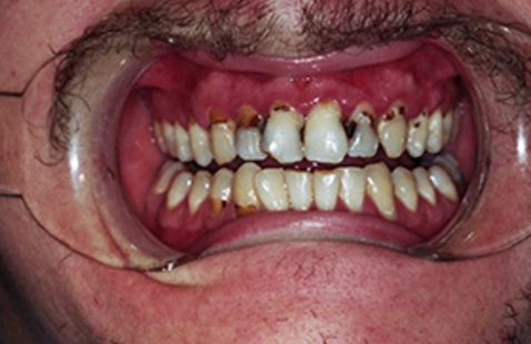 """Webinar: """"Meth Mouth"""" - A State of Decay"""
