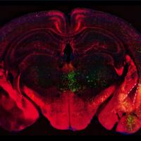 FAU Neuroscience Seminar Series: Inhibitory Neuron Dysfunction in the Amygdala: A Common Feature of Schizophrenia Spectrum Disorder?
