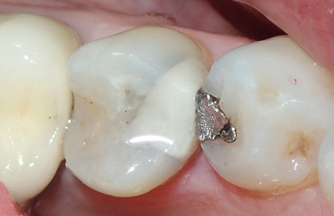Minimally Invasive Dentistry in the Age of COVID-19