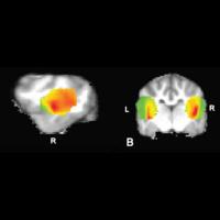 FAU Special Neuroscience Seminar: 10 years & 100 MRI-Dogs: Progress in Decoding Dogs' Brains