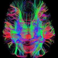 McGovern Institute for Brain Research