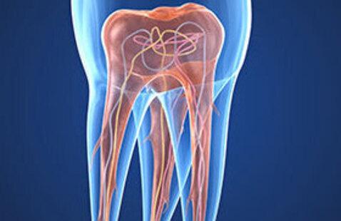 WEBINAR: Multirooted Endodontics: Simple Strategies for Complex Teeth