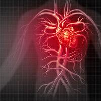 Preventing Heart Disease Class