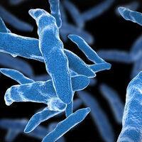 Friday Science Seminar: Simulations of Key Enzymes in Tuberculosis
