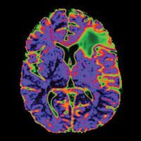 Department of Neurological Surgery