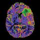 Neurological Surgery Grand Rounds