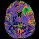 UCSF CME: Neurosurgery Update 2019